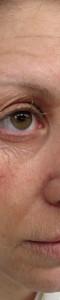 Vieillissement moitié visage